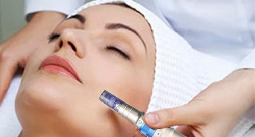 SKIN NEEDLING TREATMENT MELBOURNE - CAULFIELD