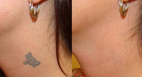 LASER TATTOO REMOVAL CAULFIED MELBOURNE